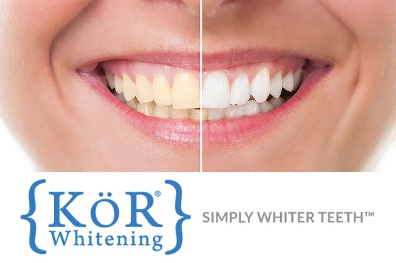 KöR Teeth Whitening in College Station