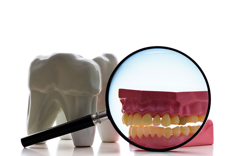 Root Canal in College Station
