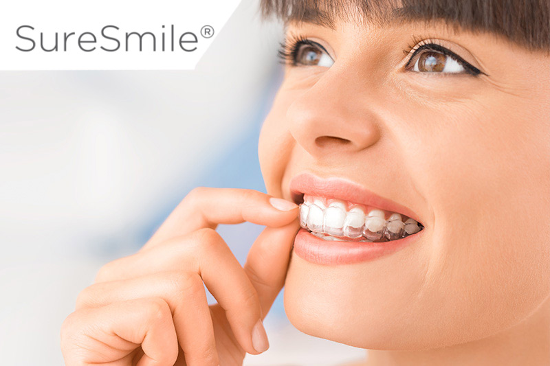SureSmiles Clear Aligners in College Station
