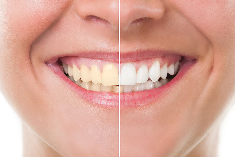 Teeth Whitening in College Station